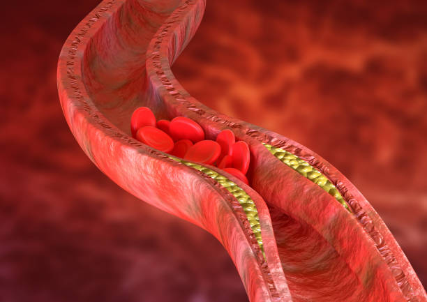 Atherosclerosis is an accumulation of cholesterol plaques in the walls of the arteries, which causes obstruction of blood flow. 3D rendering Atherosclerosis is an accumulation of cholesterol plaques in the walls of the arteries, which causes obstruction of blood flow. 3D rendering cholesterol stock pictures, royalty-free photos & images