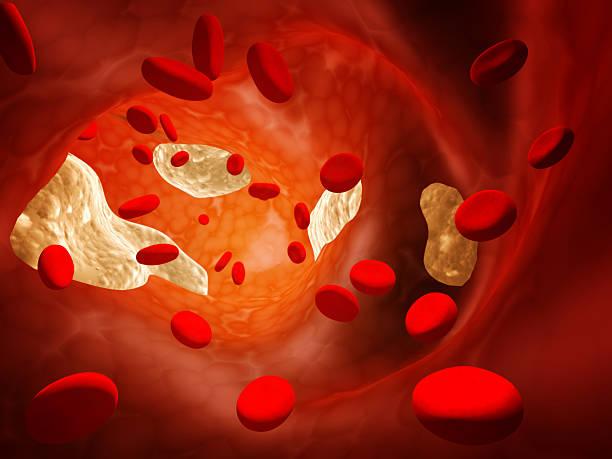 Atherosclerosis stock photo
