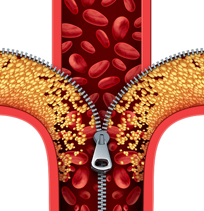 istock Atherosclerosis Therapy 509347878