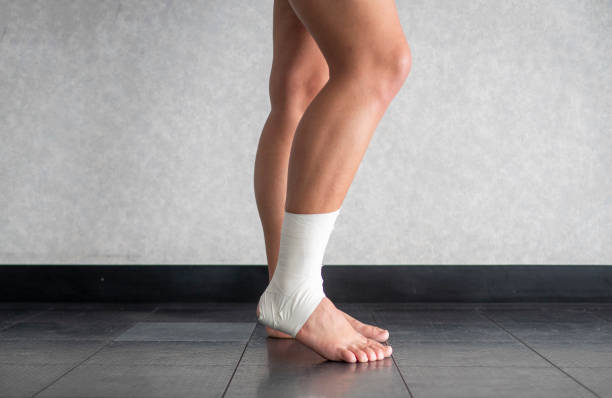 Athlete with a sprained ankle struggling to weight bear stock photo