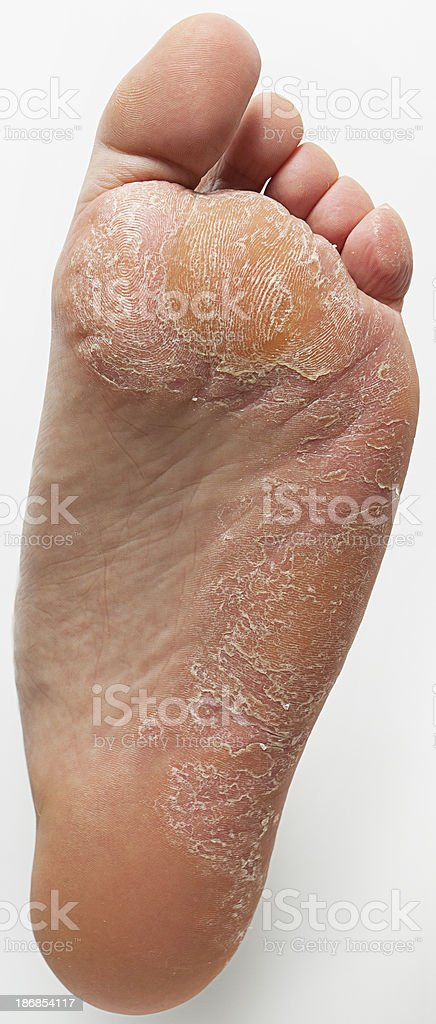 Athlete's Foot and Callus stock photo