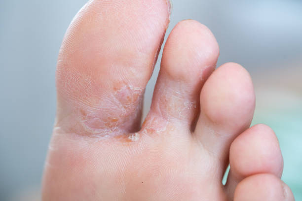 athlete's foot - fungus stock pictures, royalty-free photos & images
