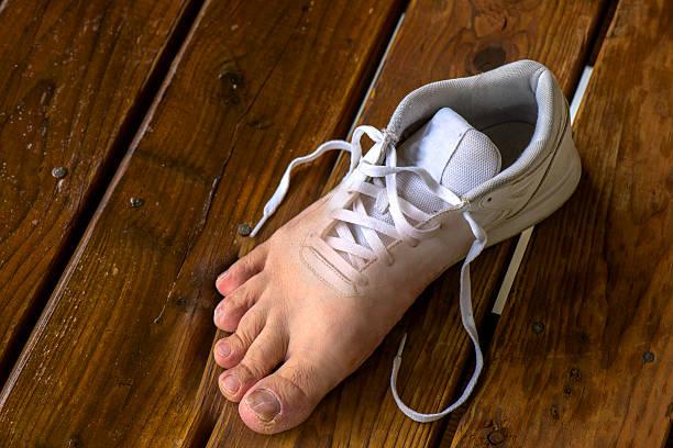 Athlete's Foot stock photo