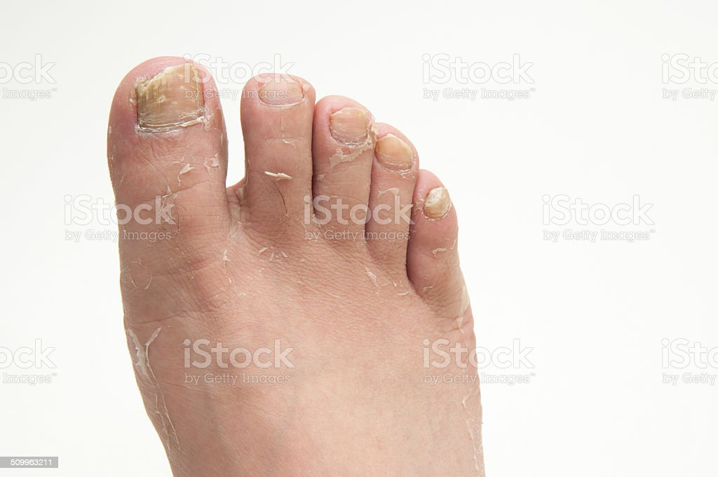 Athlete's Foot stock photo
