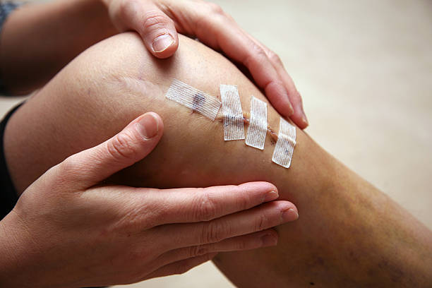 Athletic invasive knee surgery, repairing ligaments stock photo