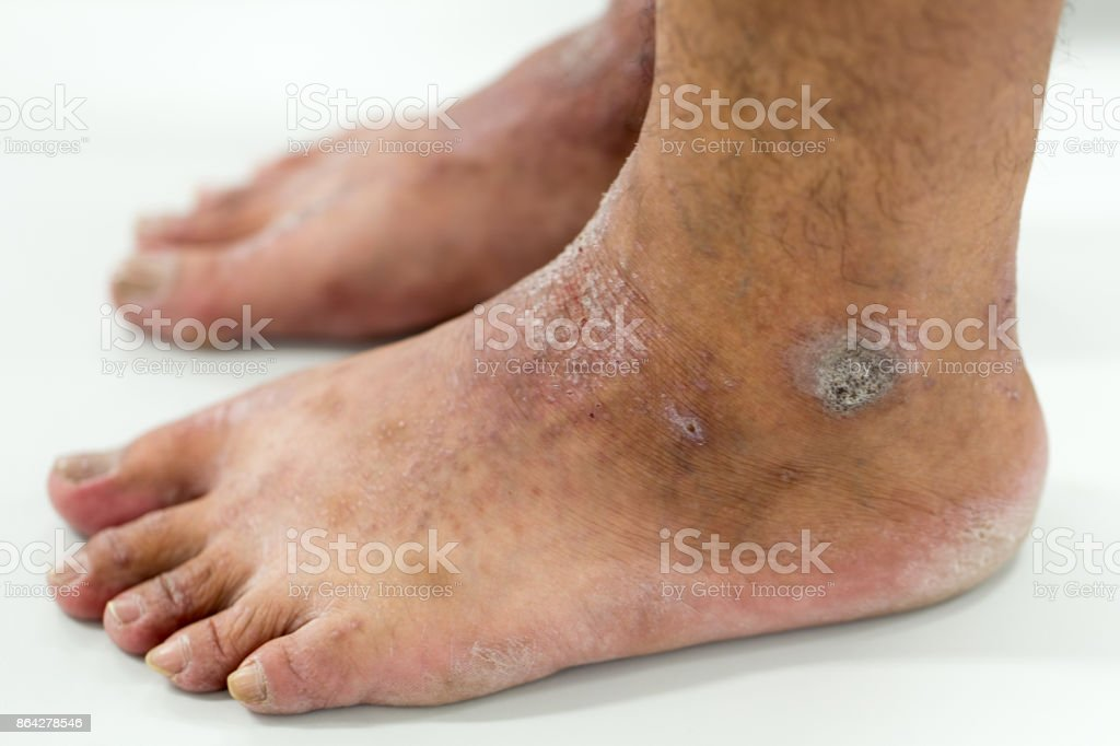 Atopic dermatitis (AD), also known as atopic eczema, is a type of inflammation of the skin (dermatitis) at foot. stock photo