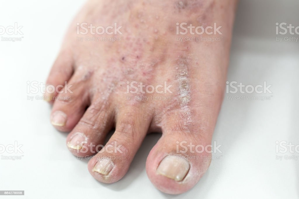 Atopic dermatitis (AD), also known as atopic eczema, is a type of inflammation of the skin (dermatitis) at foot. royalty-free stock photo