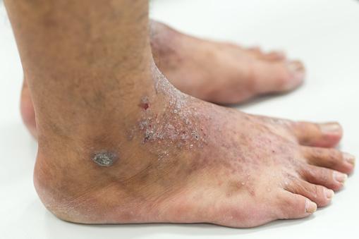 Dermatitis Atópica En Pie Foto de stock y más banco de imágenes de Alergia