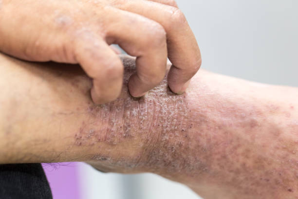an introduction and background of atopic dermatitis disease Background there are gaps in our knowledge of the prevalence of adult atopic dermatitis  proportion of subjects reporting severe disease was lower than.