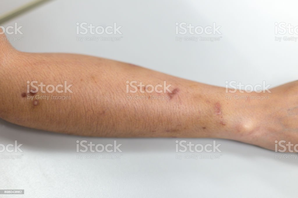 Atopic dermatitis (AD), of inflammation of the skin (dermatitis). stock photo