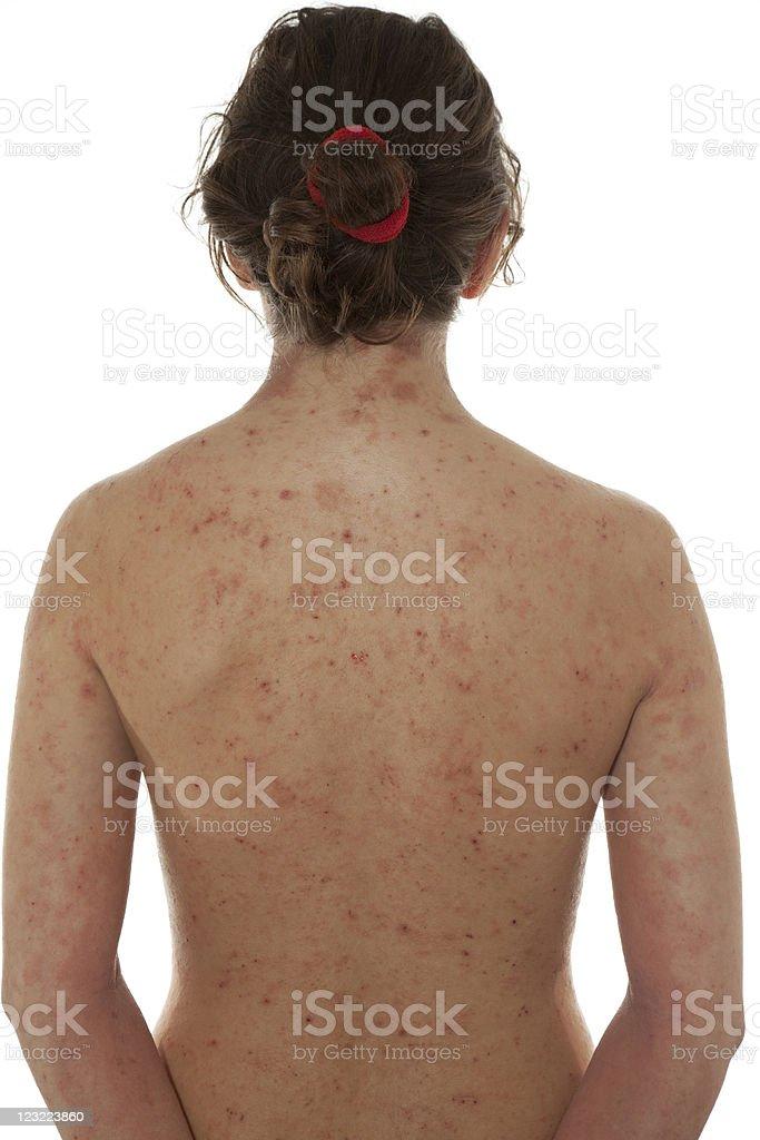 Atopic dermatitis royalty-free stock photo