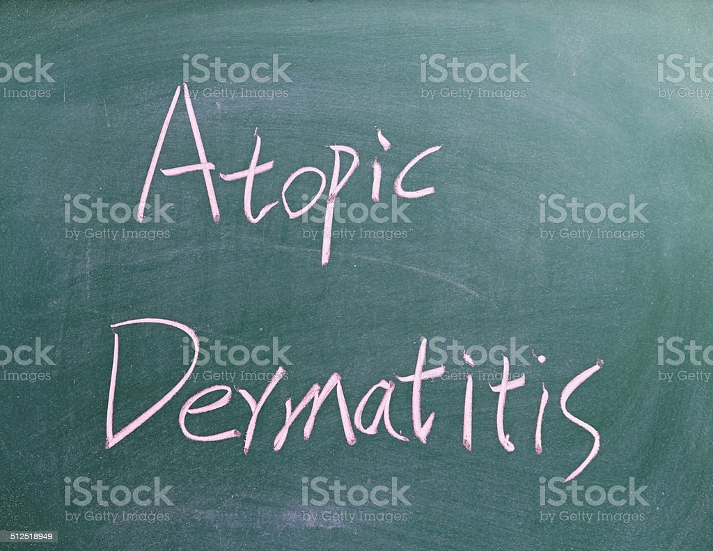Atopic Dermatitis stock photo