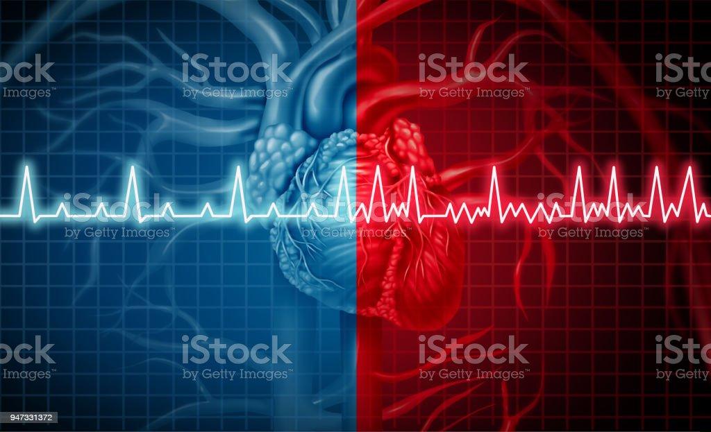 Atrial Fibrillation - Стоковые фото Анатомия роялти-фри