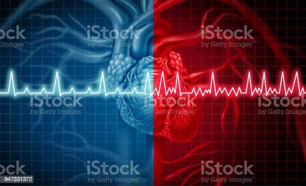 Atrial Fibrillation — стоковые фотографии и другие картинки Анатомия