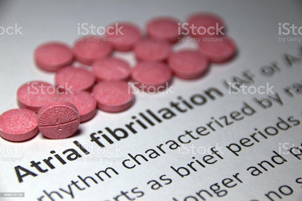 Atrial fibrillation treatment stock photo