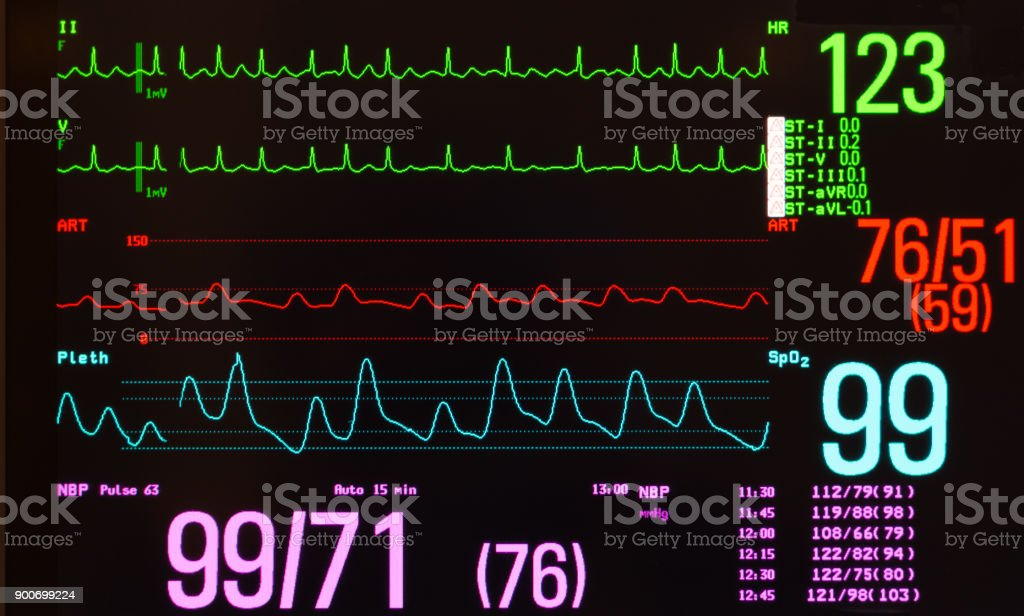 Atrial Flutter with Variable Conduction, Blood Pressure, Pulse Oxymeter and Vital Signs on Monitor with Black Screen stock photo