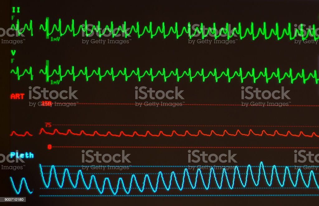 Atrioventricular Node Re-Entrant Tachycardia, Arterial Blood Pressure and Pulse Oximeter Waveform on a Medical Monitor stock photo