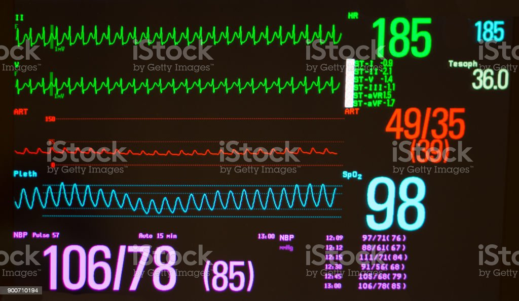 Atrioventricular Node Re-Entrant Tachycardia, Arterial Blood Pressure, Pulse Oximeter Waveform and Vital Signs on a Medical Monitor stock photo
