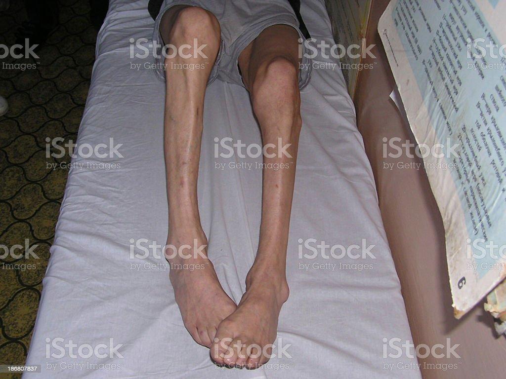 Atrophy of legs stock photo