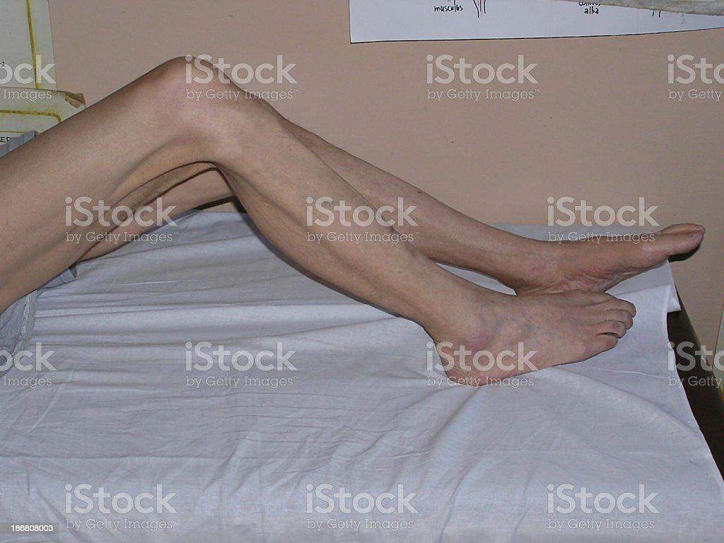 Atrophy of legs2 stock photo