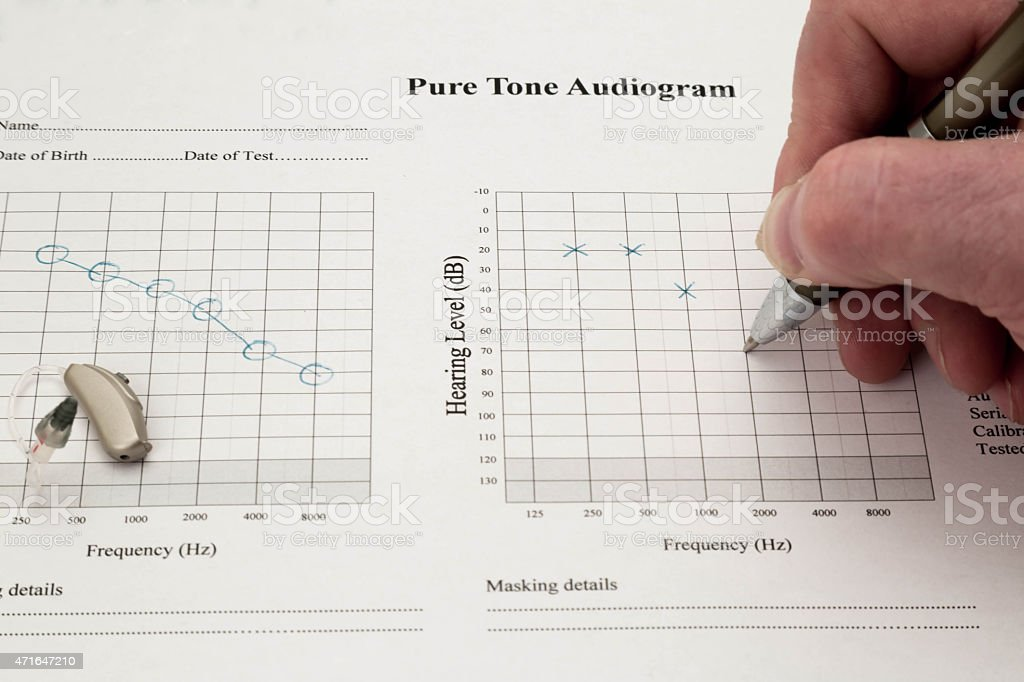 Audiogram Being Marked stock photo