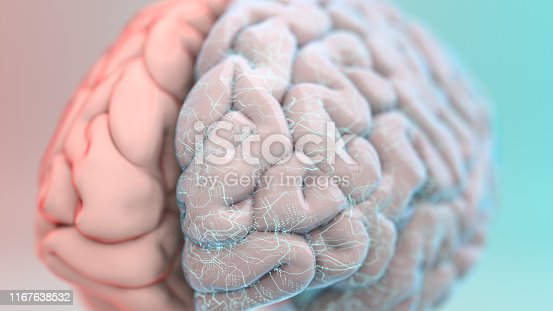 Brain with a web of neural implants on one hemisphere