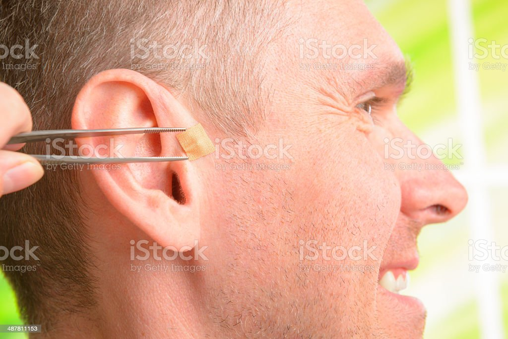 Auriculotherapy stock photo