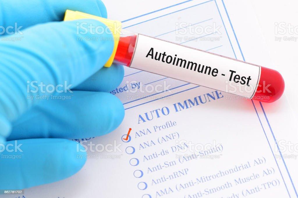 Autoimmune test stock photo