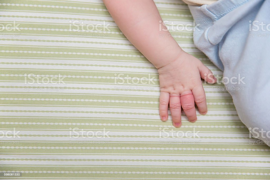 Baby boy\'s fingers after having hair wrapped around them and them...