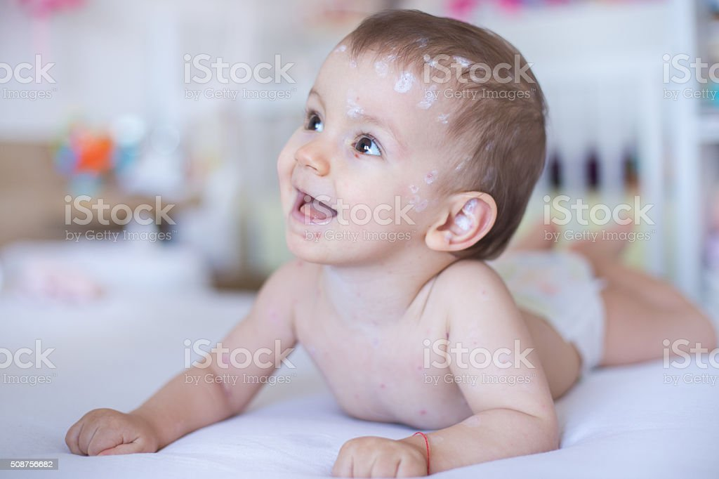 Baby girl with chickenpox stock photo