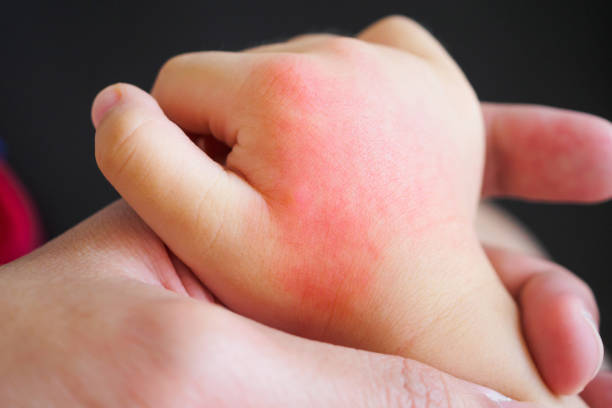 Baby hand with skin rash and allergy with red spot cause by mosquito picture id1126642460?b=1&k=6&m=1126642460&s=612x612&w=0&h= bcsw1z9upuiodx5qpuqwyc9dcci1htxjcp bhdcs6s=