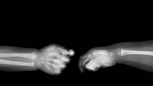 babys hände röntgen- und leeren bereich auf der oberseite. (die hand). isoliert - skelett hand stock-fotos und bilder