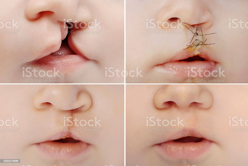 Baby with cleft before and after surgery stock photo