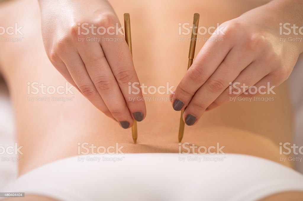 Young woman having her lumbar back acupuncture