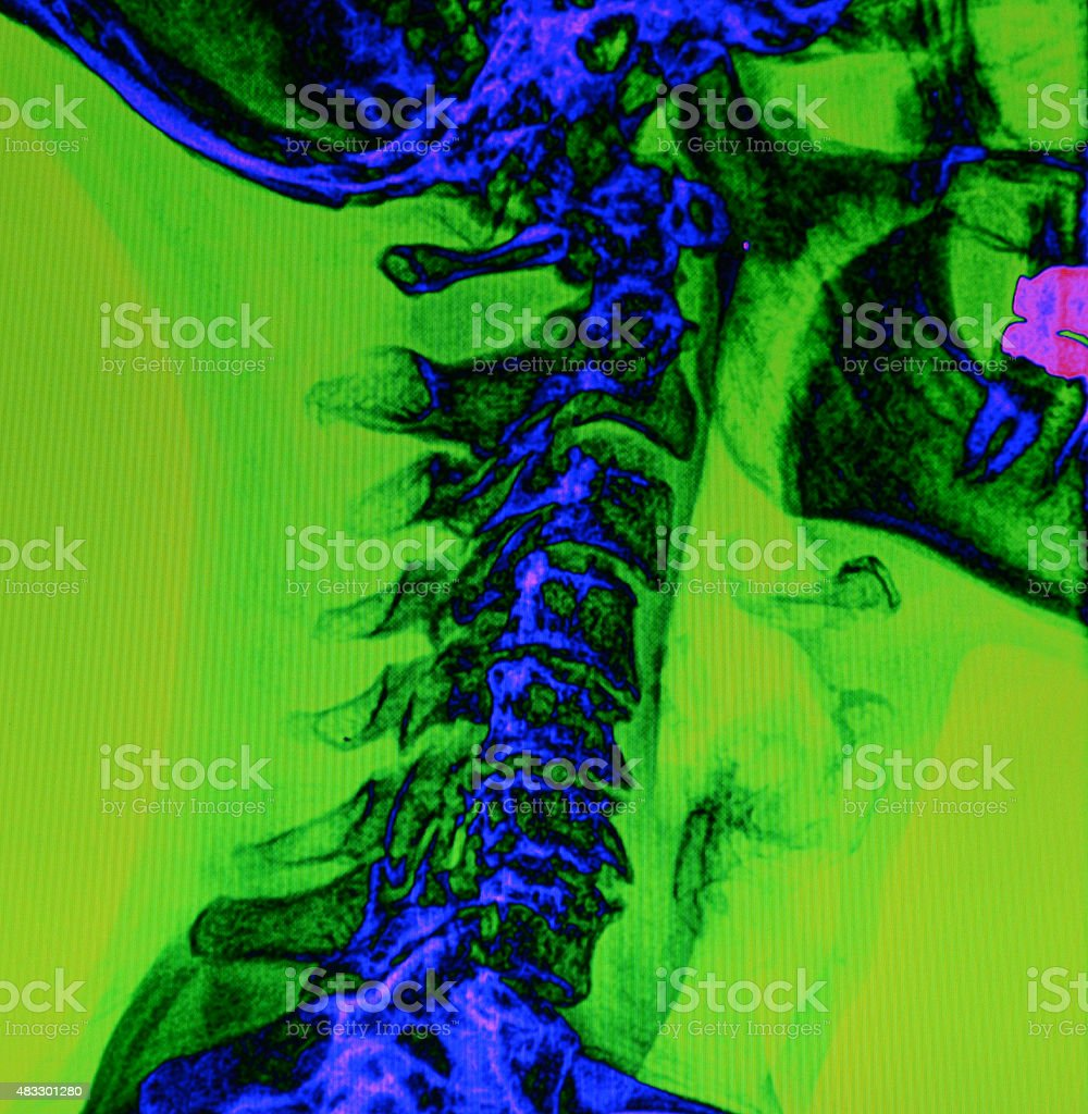 Back and spine x-ray stock photo