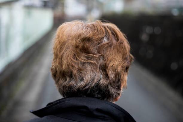 Rücken der älteren Frau – Foto