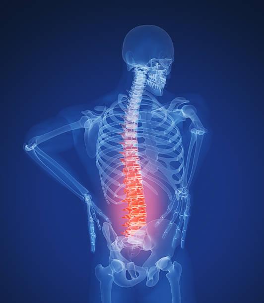 Dolor de espalda - foto de stock
