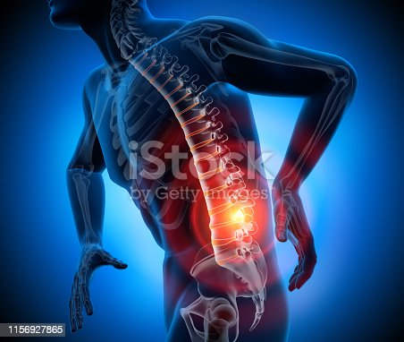 istock Back pain-conceptual artwork-3d illustration 1156927865