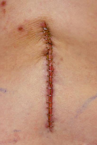 Back Surgery stock photo