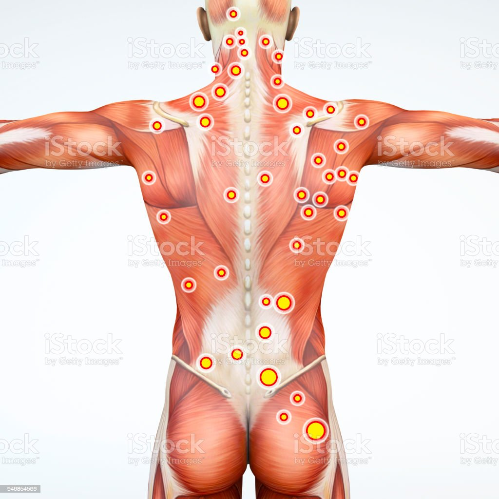 Back View Of A Man And His Trigger Points Anatomy Muscles 3d ...