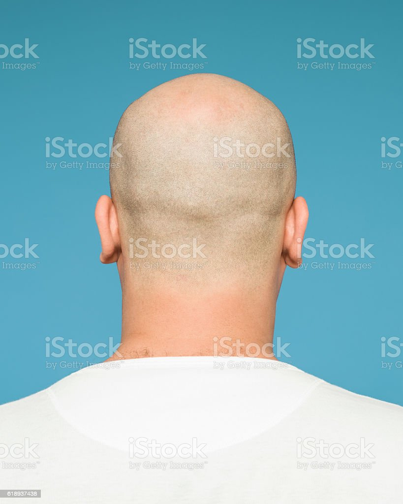 Image result for bald head photos