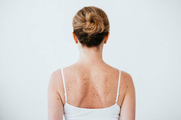 Rückansicht einer Frau mit Melanom auf erkrankter Haut isoliert auf weiß – Foto