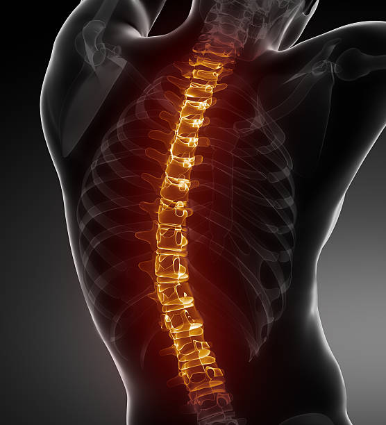Backbone  problems - medical posterior view Glowing spine in x-ray body janulla stock pictures, royalty-free photos & images