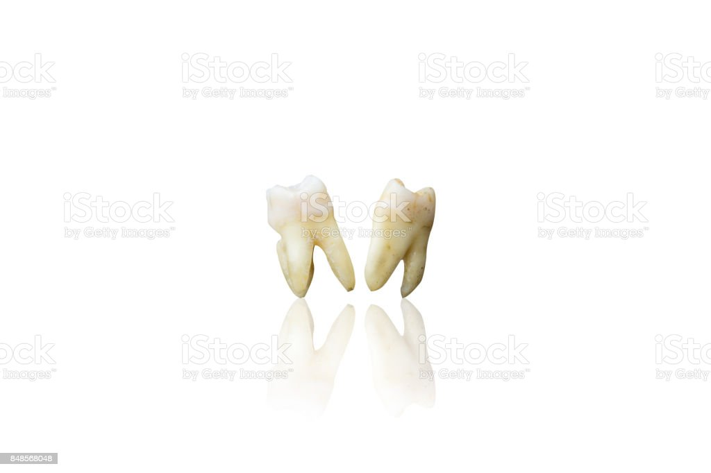 Background of extraction teeth on isolate white background with clipping path stock photo