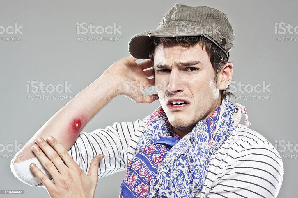Backpacker showing mosquito bite royalty-free stock photo