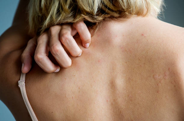 Backside of white woman back pain and ache concept stock photo