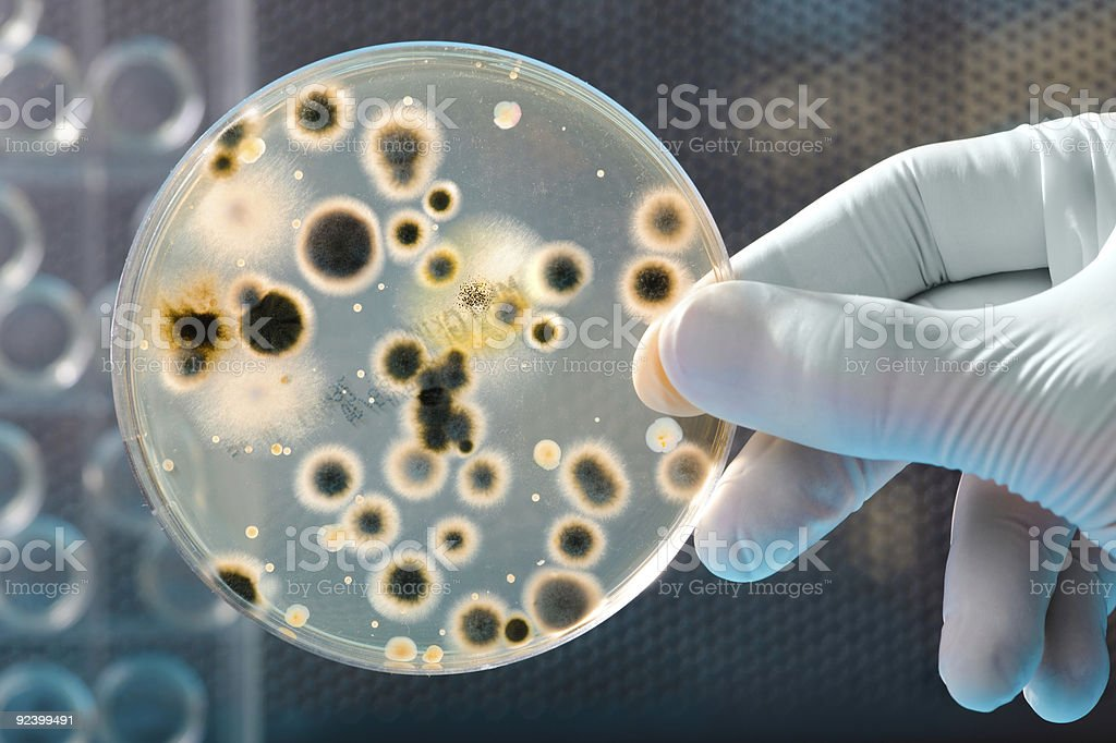bacteria culture stock photo