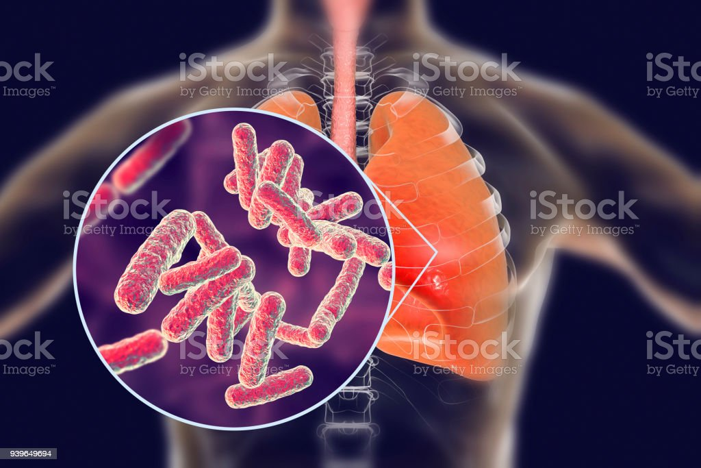 Bacteria pneumonia, medical concept stock photo