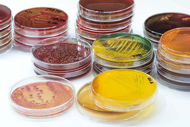 bacterial colonies culture growth on selective media.gram positi - microbiology stock pictures, royalty-free photos & images