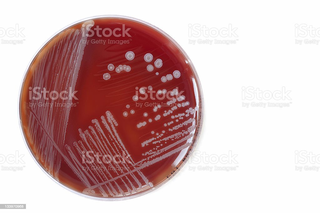 Bacterial colonies. stock photo